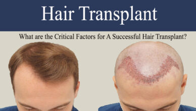 hair transplant-What are the Critical Factors for A Successful Hair Transplant?