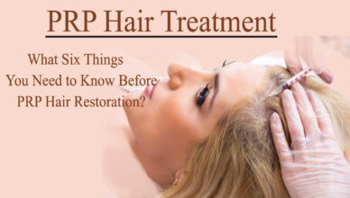 prp hair treatment- What Six Things you Need to Know Before PRP Hair Restoration?