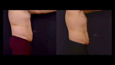 Stomach fat removal